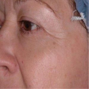 Boulder Eye Care & Surgery Center Doctors CO2RE After Photo - Laser Resurfacing
