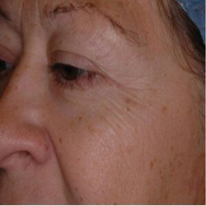 Boulder Eye Care & Surgery Center Doctors CO2RE Before Photo - Laser Resurfacing