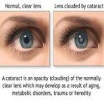 eye with and without cataract