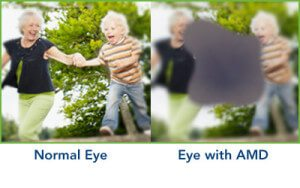 Boulder Eye Care & Surgery Center Doctors AMD 300x188 - Understanding Age-Related Macular Degeneration