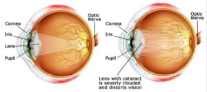 Boulder Eye Care & Surgery Center Doctors cataract lens 300x134 - What Are Cataracts?