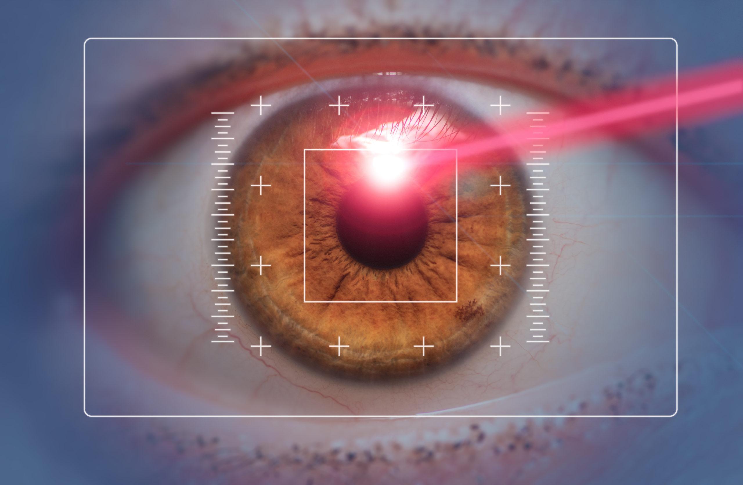 Boulder Eye Care & Surgery Center Doctors boulder and longmont lasik surgery scaled - Blog