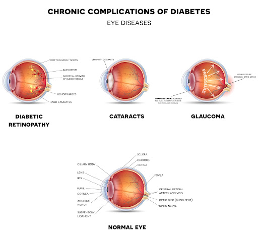 Impact of Diabetes on Vision